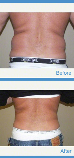 Liposuction Before - After